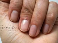 Handpflege: Das jährliche Übel