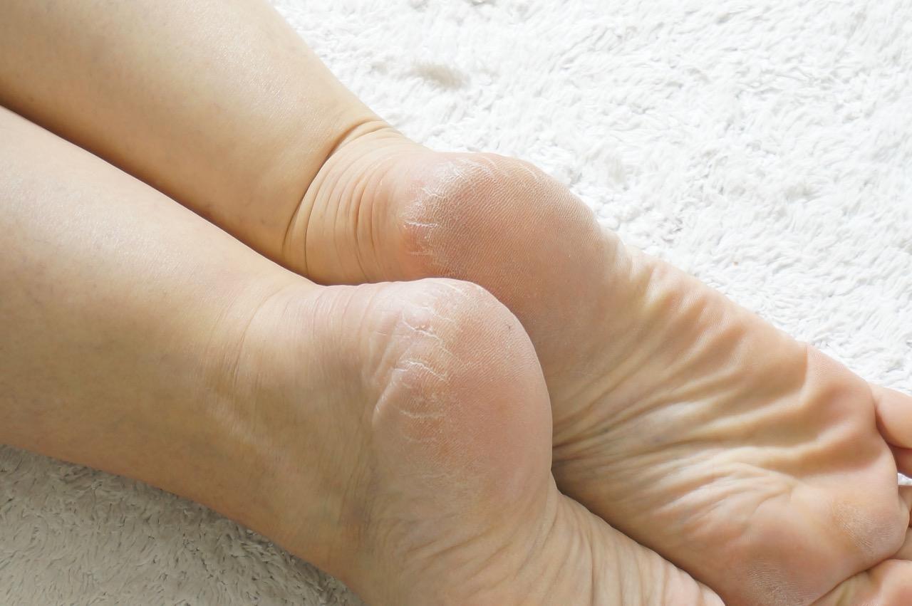 So macht ihr eure Füße sommerfit.