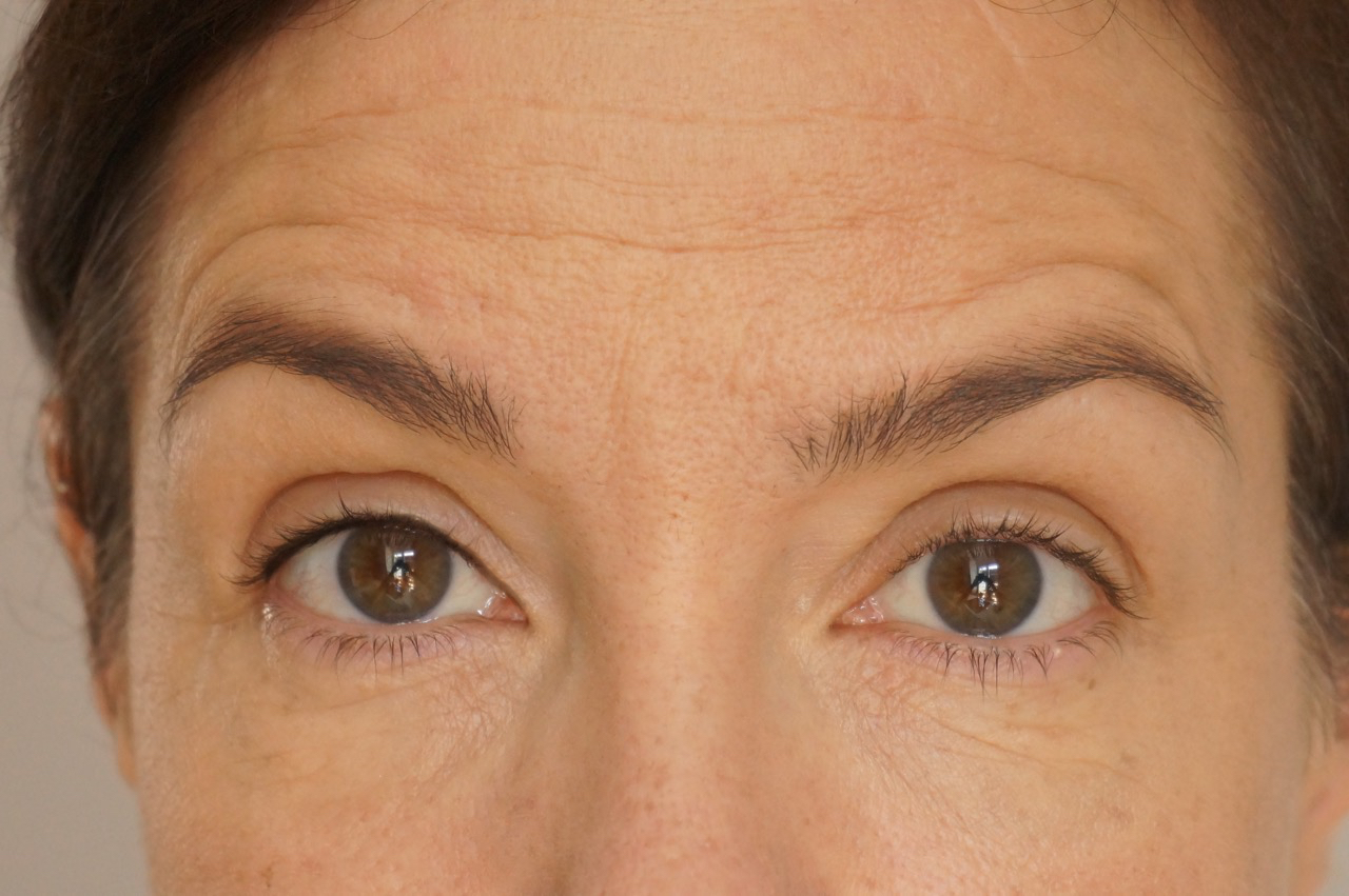Linkes Auge mit Tightlining, rechtes Auge ohne.