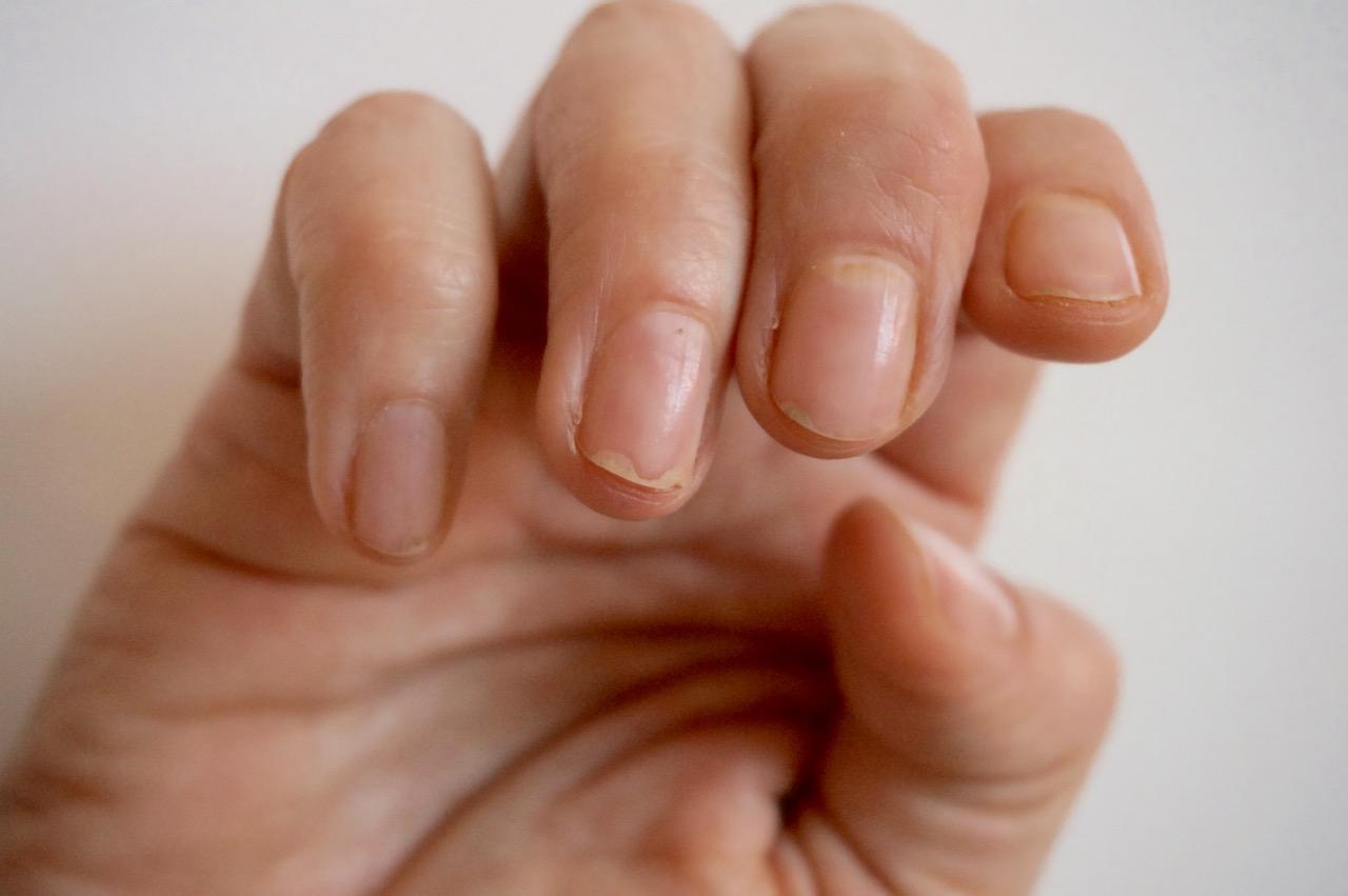 Brüchige und splitterige Fingernägel nach Shellackmaniküre und wie man sie wieder gesunf und kräftig pflegt. Tipps von Schminktante Anja Frankenhäuser.