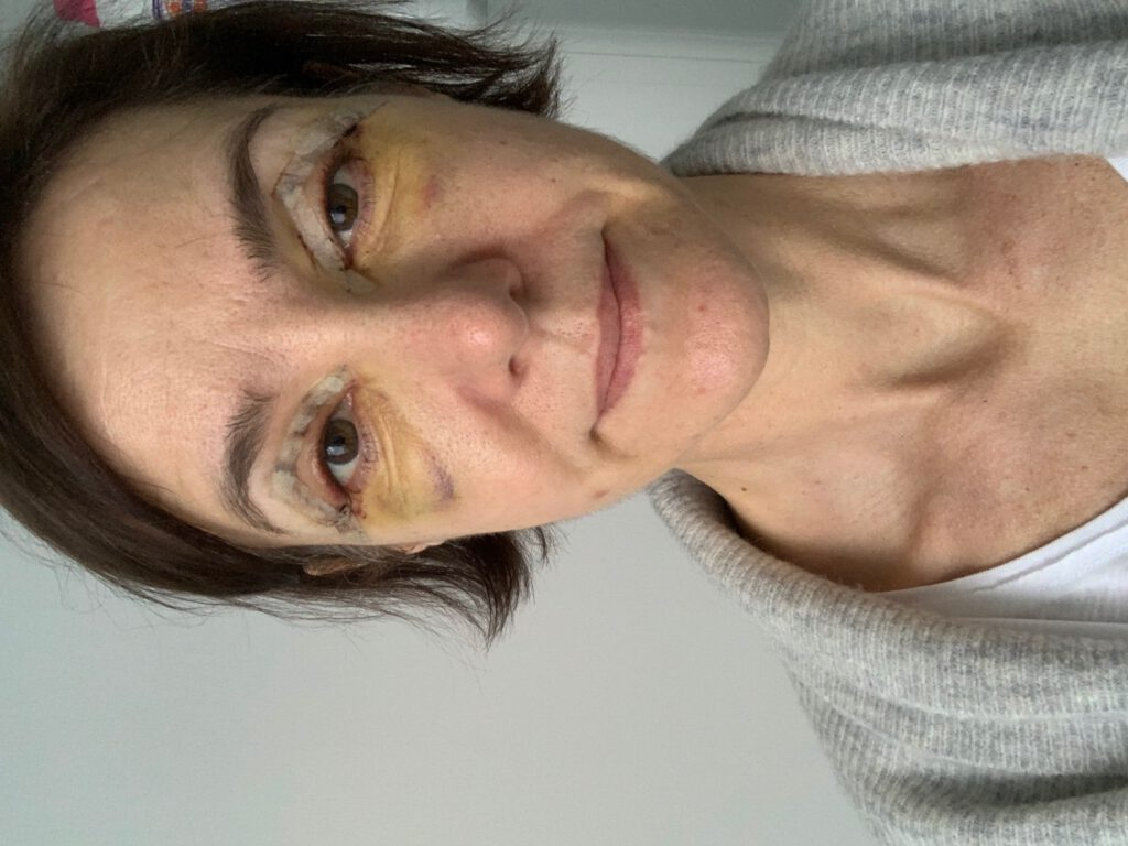 Lidstraffung, Augenlidstraffung, Lid-OP, Augen-OP, Blepharoplastik, Schlupflidkorrektur, Lidkorrektur, Schlupflid-OP, OP, Schönheitsoperation, Villa Bella, Dr. Ludger Meyer, Schminktante, Anja Frankenhäuser