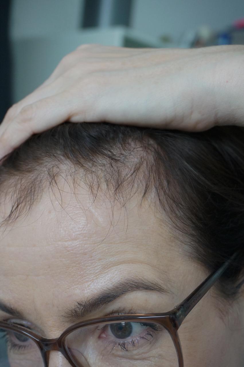 Basilikum gegen Haarausfall? Volleres Haar durch Rhizinussöl? Schminktante Anja Frankenhäuser hat die Haarkur von Rezilin ausprobiert.