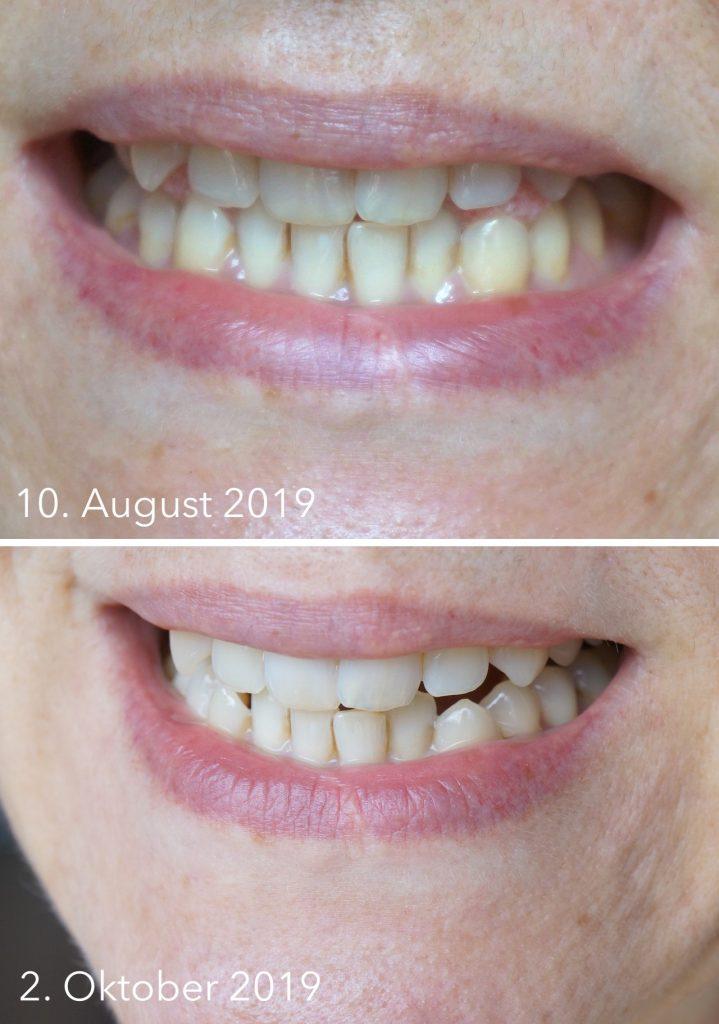 Silk'n Toothwave, elektrische Zahnbürste, Plaque, Zahnstein, Zahnsteinentfernung, Zähne, Zahnpflege, Mundhygiene, Zähneputzen, Schminktante, Beautyblog, Top-Blog, Anja Frankenhäuser