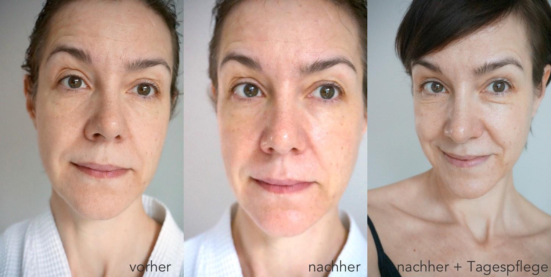 Der Vorher-Nachher-Effekt zur Behandlung mit der Hydrogel Maske von Teoxane.